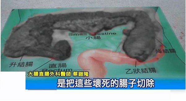 Không rửa tay sau khi sờ vào trứng, người phụ nữ bị hoại tử 90% ruột - Ảnh 2
