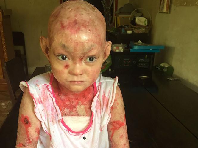 Cảm động cô gái mắc bệnh nan y mang hết tiền nhà hảo tâm tặng xây cầu giúp dân - Ảnh 1