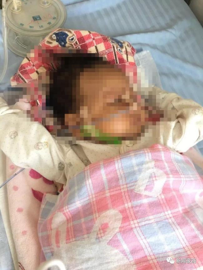 Bé trai 18 tháng tuổi sốt, hôn mê và phải nhập viện cấp cứu sau khi tiêm vắc xin 1 ngày, bác sĩ lên tiếng khuyến cáo - Ảnh 1