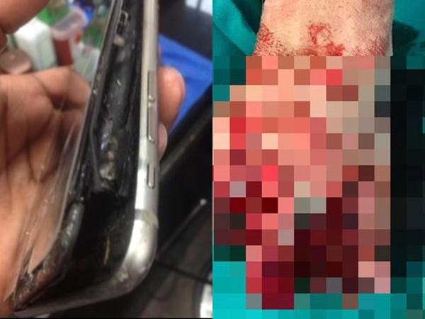 Nổ điện thoại iPhone vì vừa dùng vừa sạc, thiếu niên 13 tuổi phải cắt cụt bàn tay trái - Ảnh 1