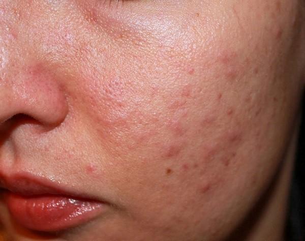 Không sử dụng kem chống nắng hàng ngày là nguyên nhân khiến da bị lên mụn - Ảnh 1