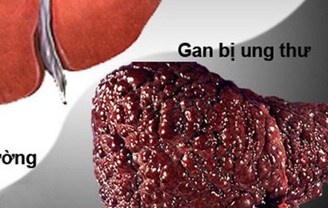 Căn bệnh ung thư đứng đầu Việt Nam: Hàng chục triệu người mang mầm bệnh - Ảnh 1