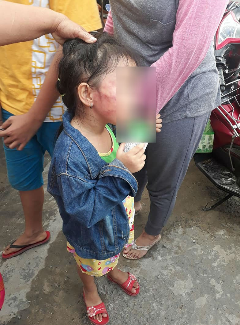 Quyết định gây ngỡ ngàng của gia đình bé gái 5 tuổi bị cô giáo tát nứt xương hàm  - Ảnh 3