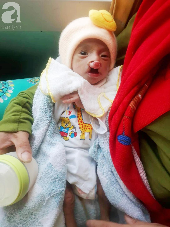Xót cảnh bé trai 2 tháng tuổi suy dinh dưỡng, nặng chỉ 2 ký mà mẹ nghèo không đủ tiền đưa lên Sài Gòn chữa bệnh - Ảnh 1
