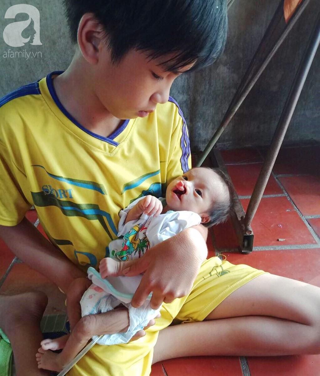Xót cảnh bé trai 2 tháng tuổi suy dinh dưỡng, nặng chỉ 2 ký mà mẹ nghèo không đủ tiền đưa lên Sài Gòn chữa bệnh - Ảnh 11