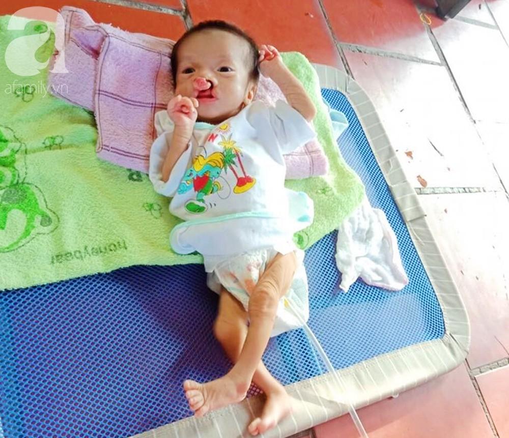 Xót cảnh bé trai 2 tháng tuổi suy dinh dưỡng, nặng chỉ 2 ký mà mẹ nghèo không đủ tiền đưa lên Sài Gòn chữa bệnh - Ảnh 3