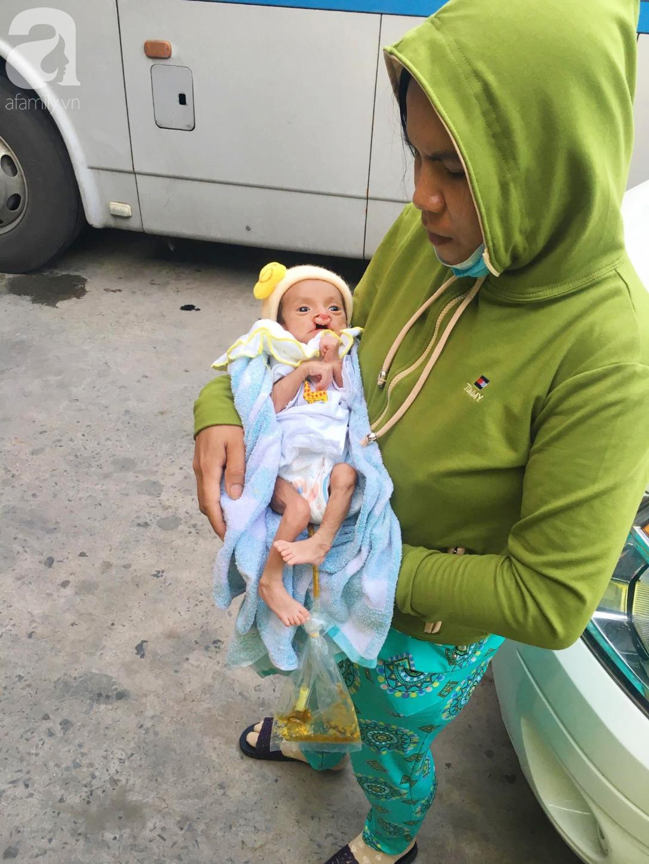 Xót cảnh bé trai 2 tháng tuổi suy dinh dưỡng, nặng chỉ 2 ký mà mẹ nghèo không đủ tiền đưa lên Sài Gòn chữa bệnh - Ảnh 4