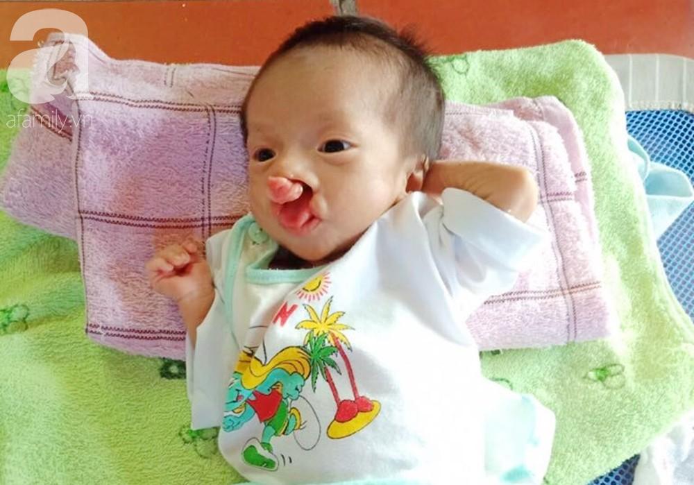 Xót cảnh bé trai 2 tháng tuổi suy dinh dưỡng, nặng chỉ 2 ký mà mẹ nghèo không đủ tiền đưa lên Sài Gòn chữa bệnh - Ảnh 5