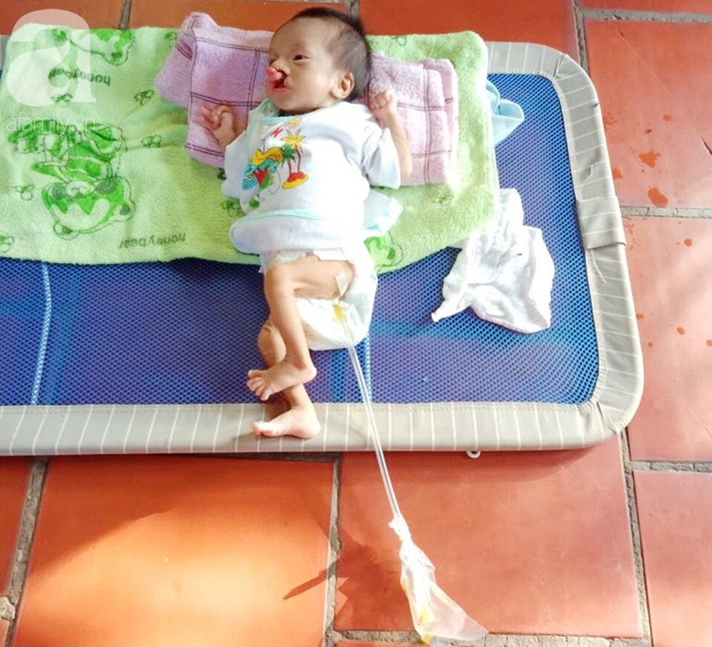 Xót cảnh bé trai 2 tháng tuổi suy dinh dưỡng, nặng chỉ 2 ký mà mẹ nghèo không đủ tiền đưa lên Sài Gòn chữa bệnh - Ảnh 10