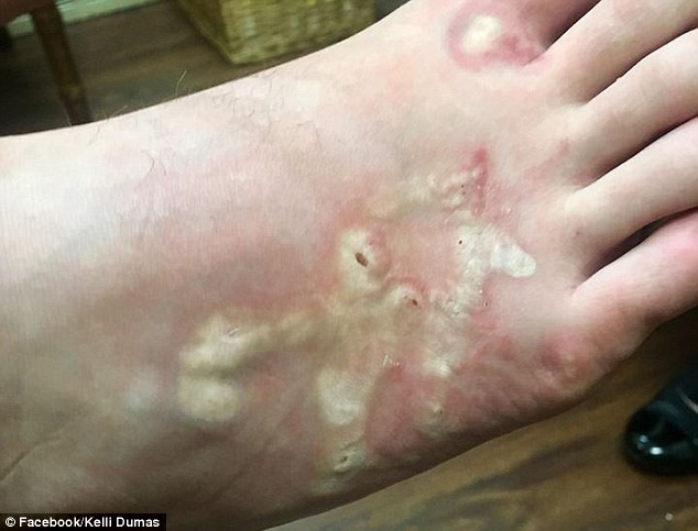 Từ 1 thói quen khi đi biển ai cũng từng làm: Chuyên gia cảnh báo về khả năng bị nhiễm loại kí sinh trùng nguy hiểm - Ảnh 2