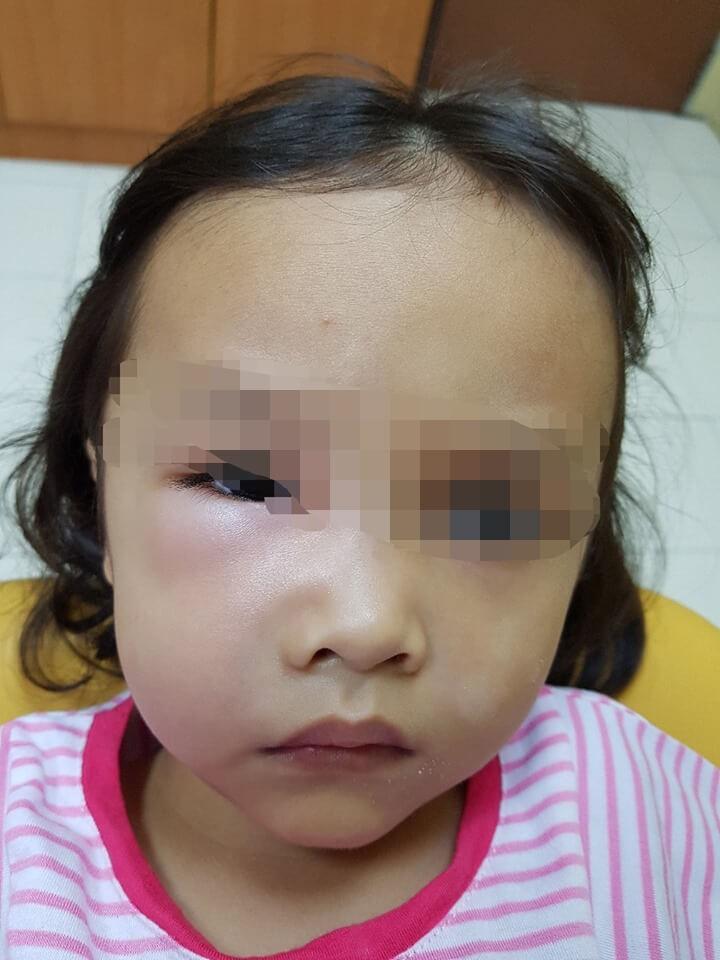 Bé gái 5 tuổi bị sưng phù một bên mặt và suýt mất mạng, nguyên nhân thật sự khiến nhiều cha mẹ phải giật mình - Ảnh 1