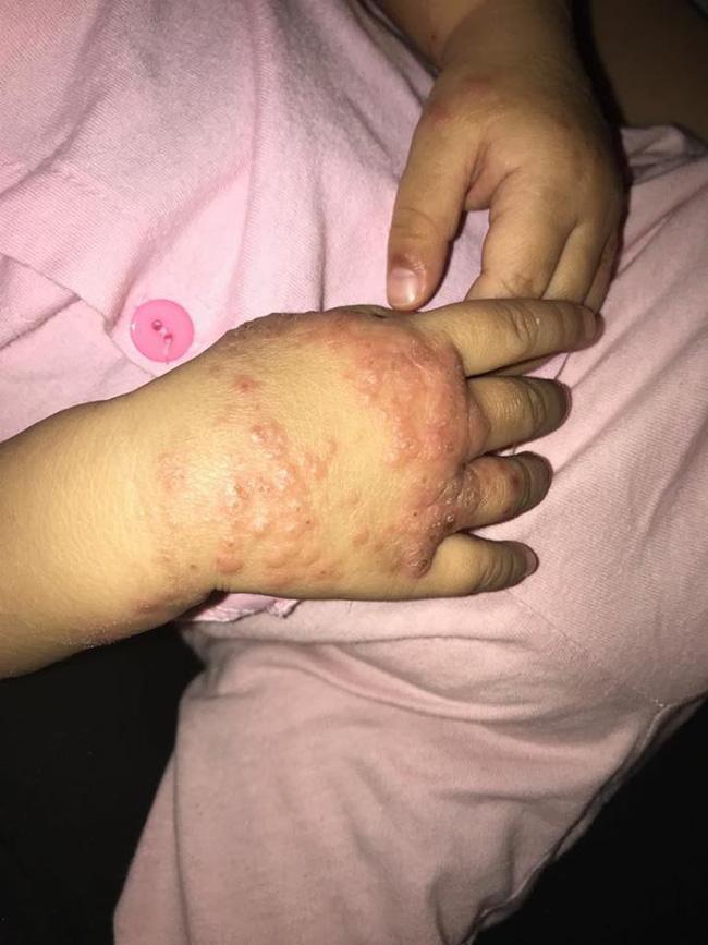 Ròng rã theo con bị viêm da cơ địa, gãi trầy da tróc vảy cũng không hết ngứa, mẹ Hà Nội đúc rút loạt kinh nghiệm xương máu dành cho hội chị em nuôi con nhỏ - Ảnh 5