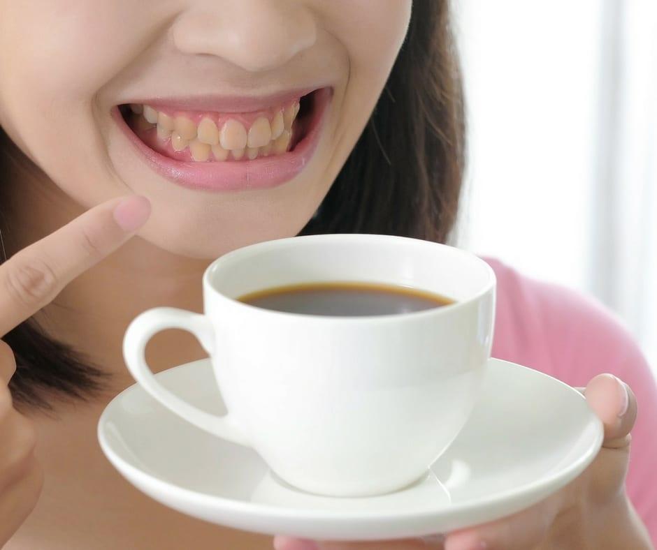 Sở hữu nụ cười tỏa nắng với cách làm trắng răng cực đơn giản tại nhà - Ảnh 2