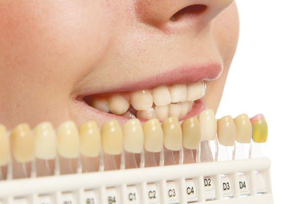 Sở hữu nụ cười tỏa nắng với cách làm trắng răng cực đơn giản tại nhà - Ảnh 1