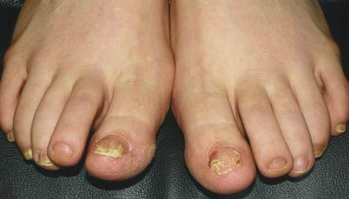 6 vấn đề sức khỏe biểu hiện ở bàn chân mà bạn tuyệt đối không nên bỏ qua - Ảnh 1