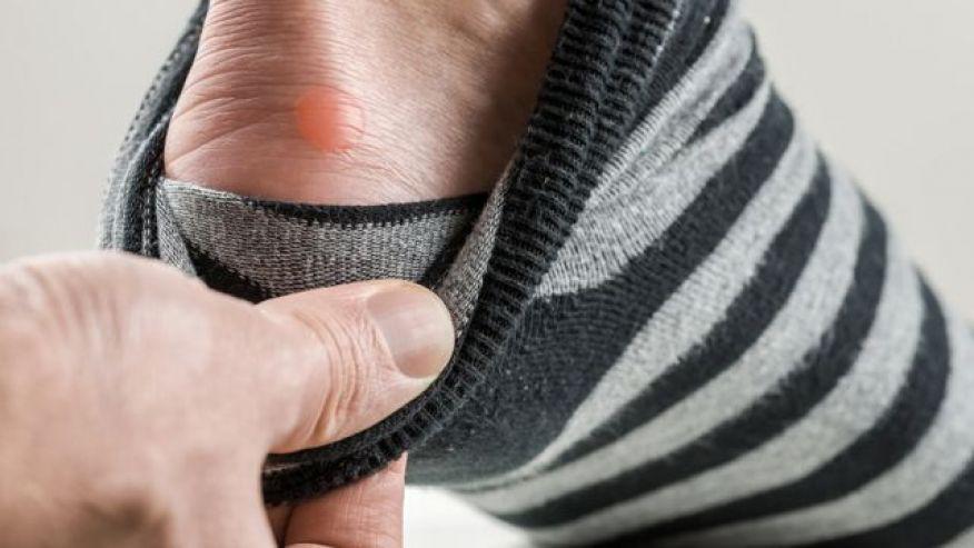 6 vấn đề sức khỏe biểu hiện ở bàn chân mà bạn tuyệt đối không nên bỏ qua - Ảnh 3