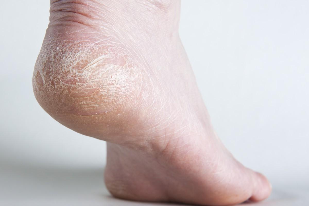 6 vấn đề sức khỏe biểu hiện ở bàn chân mà bạn tuyệt đối không nên bỏ qua - Ảnh 6