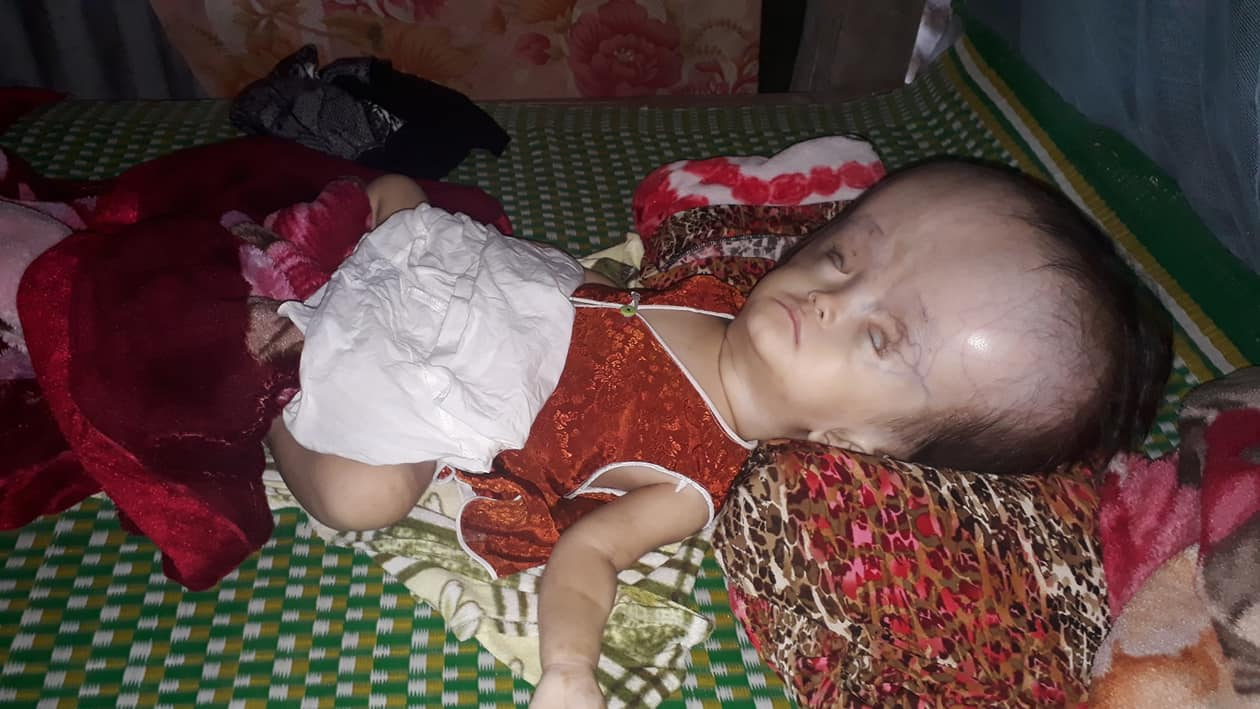 Nghiệt ngã số phận của bé gái 16 tháng tuổi mắc phải căn bệnh não úng thủy - Ảnh 1