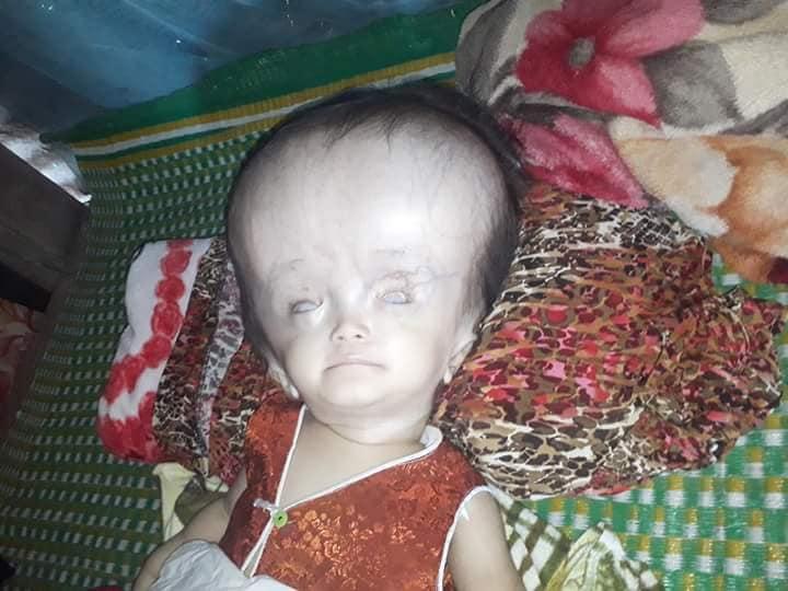 Nghiệt ngã số phận của bé gái 16 tháng tuổi mắc phải căn bệnh não úng thủy - Ảnh 2