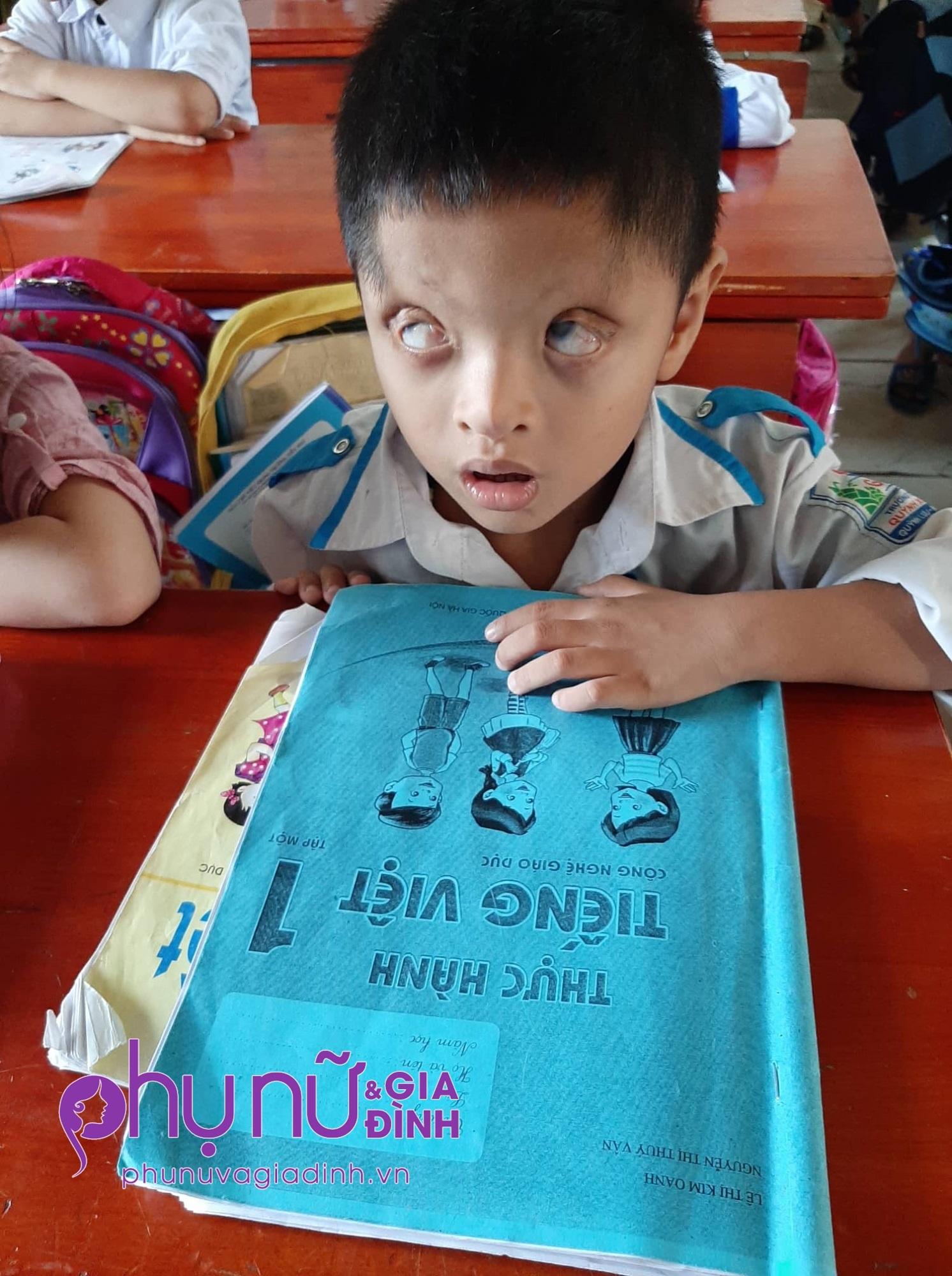 Nghị lực sống phi thường và khát vọng đến trường của cậu bé 6 tuổi có đôi mắt chỉ nhìn thấy 2% ánh sáng - Ảnh 1