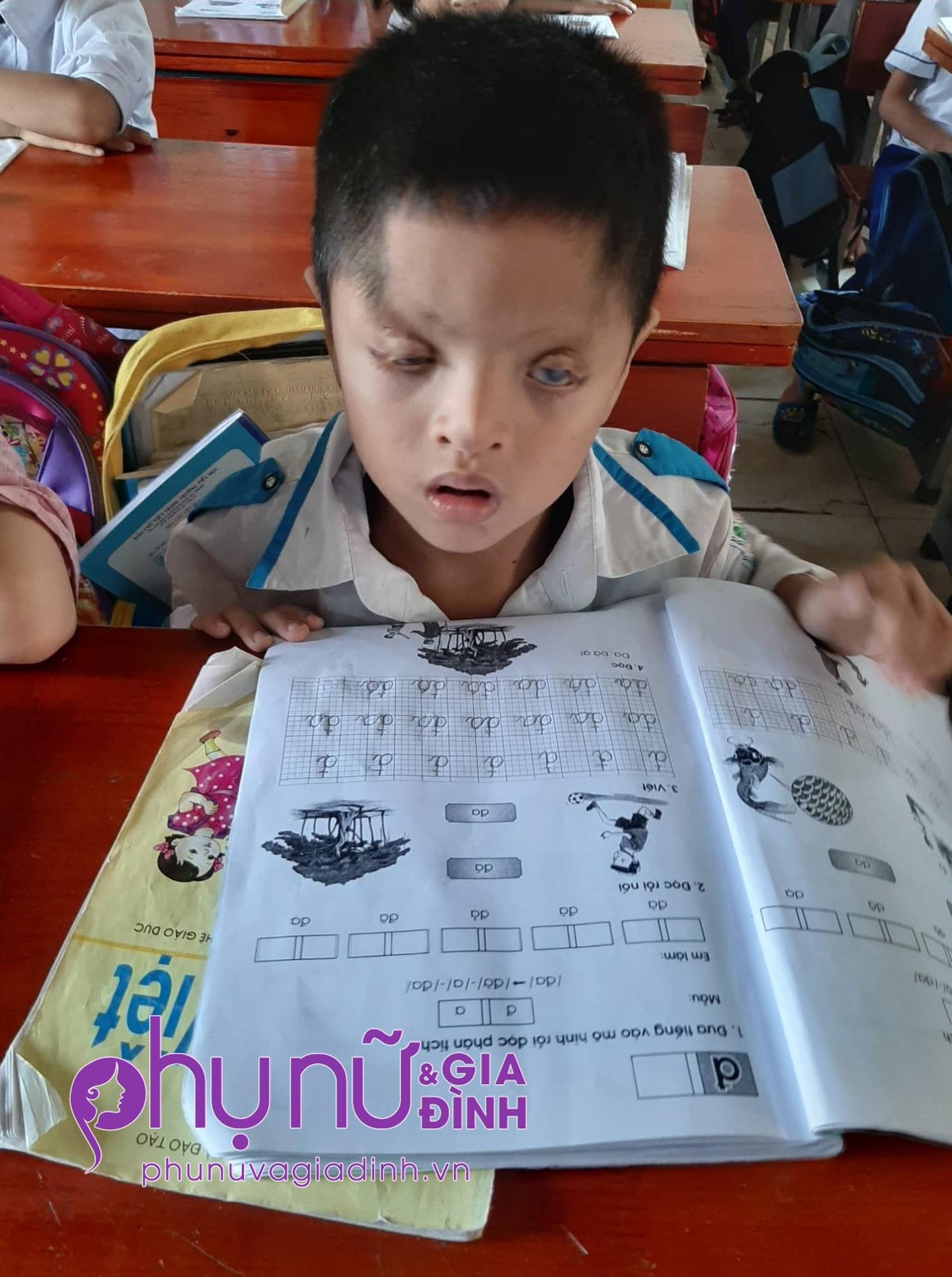 Nghị lực sống phi thường và khát vọng đến trường của cậu bé 6 tuổi có đôi mắt chỉ nhìn thấy 2% ánh sáng - Ảnh 2