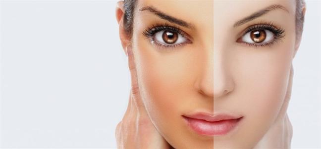 Da bạn đẹp lên bất ngờ nhờ vitamin A - Ảnh 5
