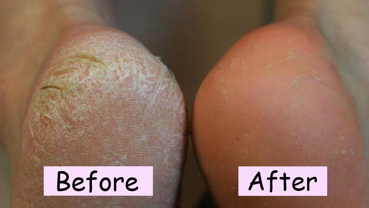 Chân nứt gót, chảy máu có thể trị dứt điểm sau 7 ngày với mẹo này - Ảnh 1