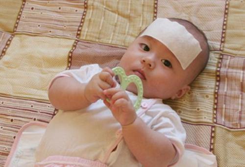 Bé 2 tháng bị ho kéo dài mẹ chủ quan khiến bé rơi vào tình trạng nguy kịch, hối hận thì đã muộn - Ảnh 2