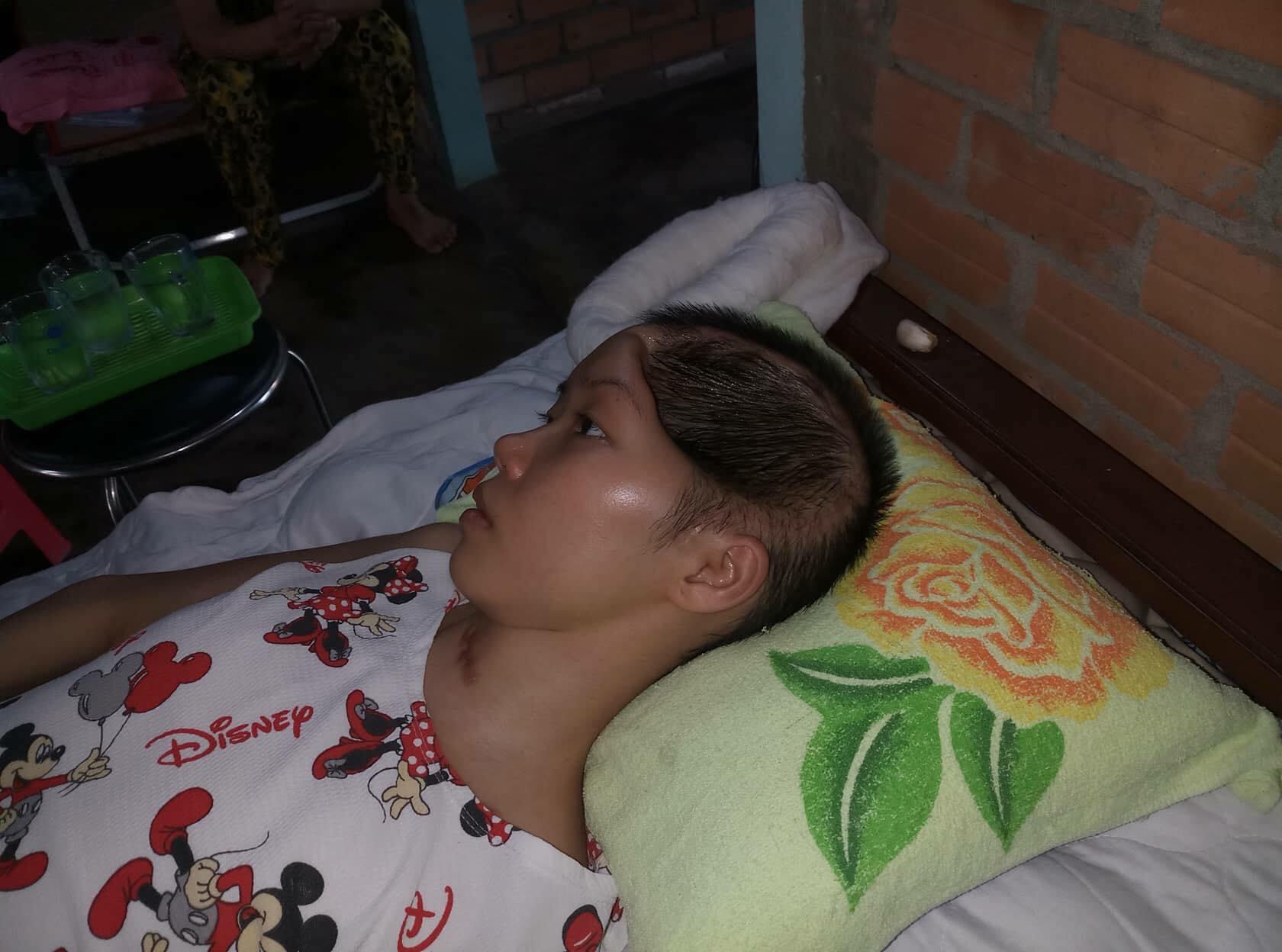 Bi kịch cuộc đời của cô gái xinh đẹp bị khuyết 1/2 hộp sọ sau tai nạn giao thông - Ảnh 2