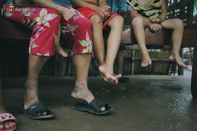 5 đứa trẻ đói ăn bên người mẹ khờ mang bụng bầu 7 tháng: 'Con không muốn mẹ sinh em nữa, nhà con nghèo lắm rồi' - Ảnh 3