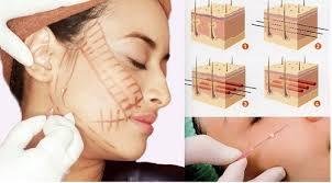 Cấy chỉ căng da mặt, người phụ nữ phải 'lột toàn bộ da mặt vùng cấy chỉ' để chữa trị - Ảnh 1