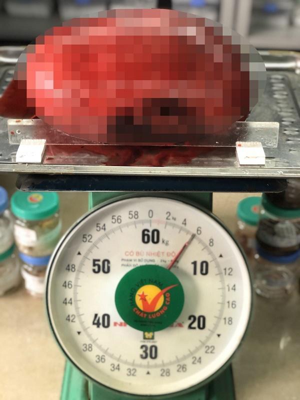 Cứ tưởng béo, đi khám mới biết mang khối u nặng tới 6kg trong ổ bụng - Ảnh 2