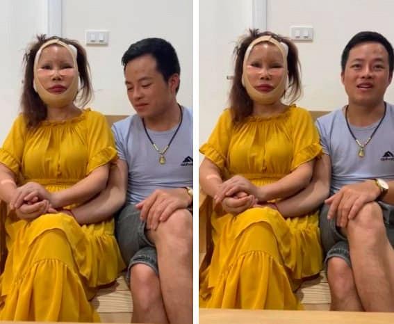 Diện mạo mới của cô dâu 62 tuổi ở Cao Bằng sau 3 ngày khiến dân mạng khiếp vía vì hậu phẫu căng da mặt - Ảnh 1