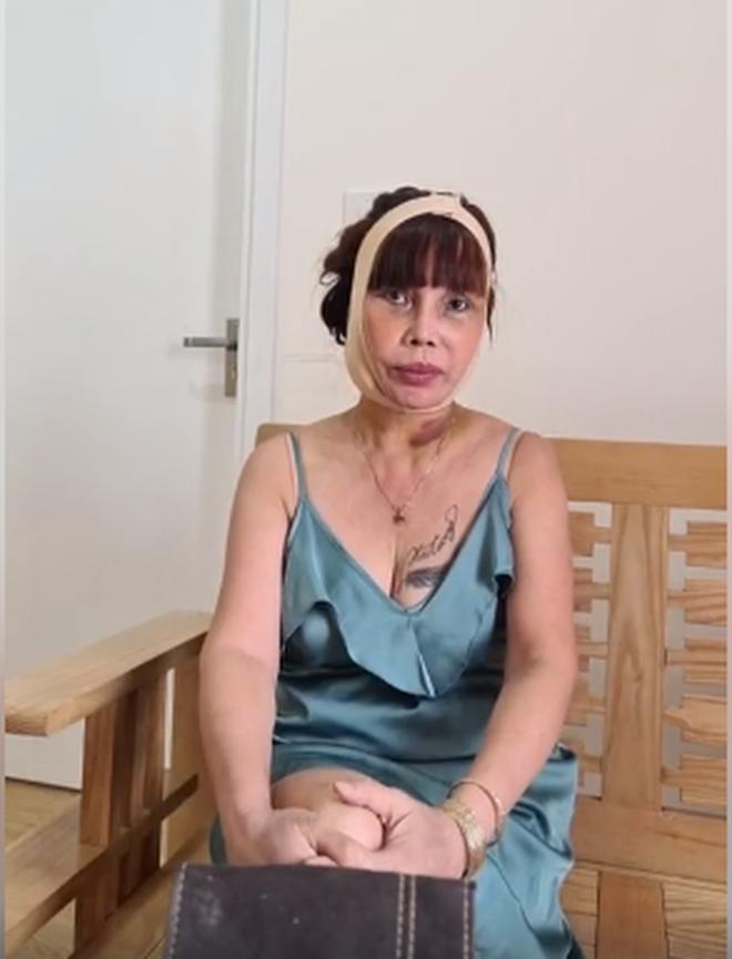Diện mạo mới của cô dâu 62 tuổi sau 3 ngày đại phẫu kéo căng da mặt: Chiếc miệng méo xệch khiến nhiều người hoang mang - Ảnh 6