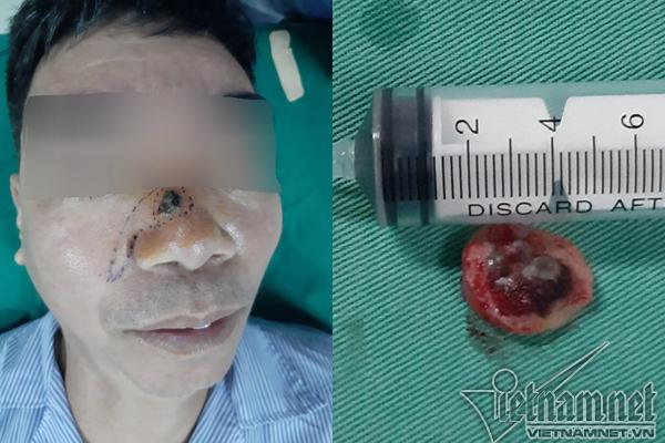 Tẩy nốt ruồi lại mọc, người đàn ông phải khoét mũi vì ung thư - Ảnh 1