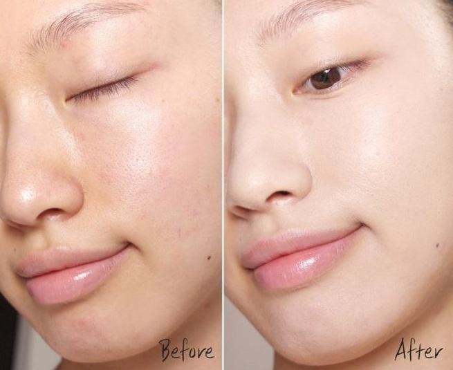 Kết quả hình ảnh cho da căng mướt sau khi xài serum