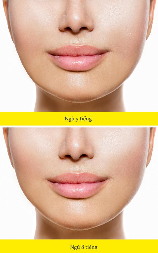 Chuyên gia da liễu chỉ ra 10 nguyên nhân khiến da mặt ngày càng chảy xệ - Ảnh 8