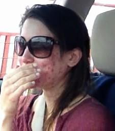 Cô gái người Mỹ kiên trì theo đuổi chế độ detox giúp đánh bay mụn chi chít trên khuôn mặt sau 1 năm - Ảnh 2