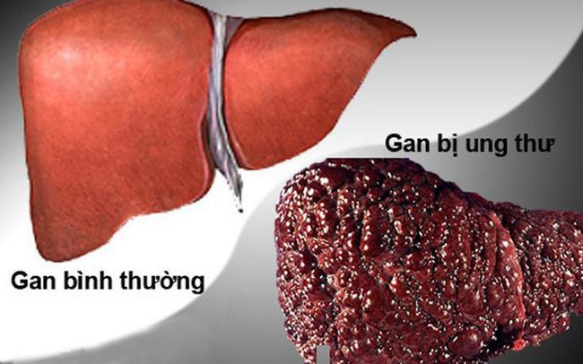 Để ý triệu chứng '2 ngứa 1 đen' trên cơ thể, báo hiệu ung thư gan đến gần - Ảnh 1