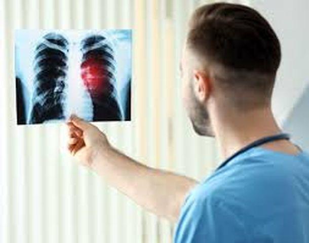 4 biểu hiện khi ngủ cho thấy phổi của bạn đã bị tổn thương - Ảnh 1
