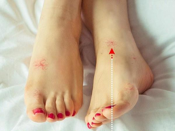 Nhìn dấu hiệu bất thường ở đôi chân cũng có thể đoán biết cơ thể đang gặp phải vấn đề sức khỏe gì - Ảnh 1