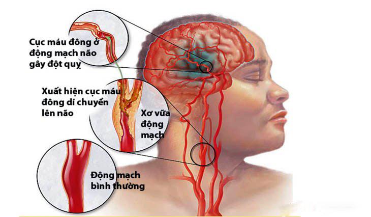 Căn bệnh phổ biến dễ phòng ngừa gây ra 80% ca đột quỵ ở Việt Nam - Ảnh 1