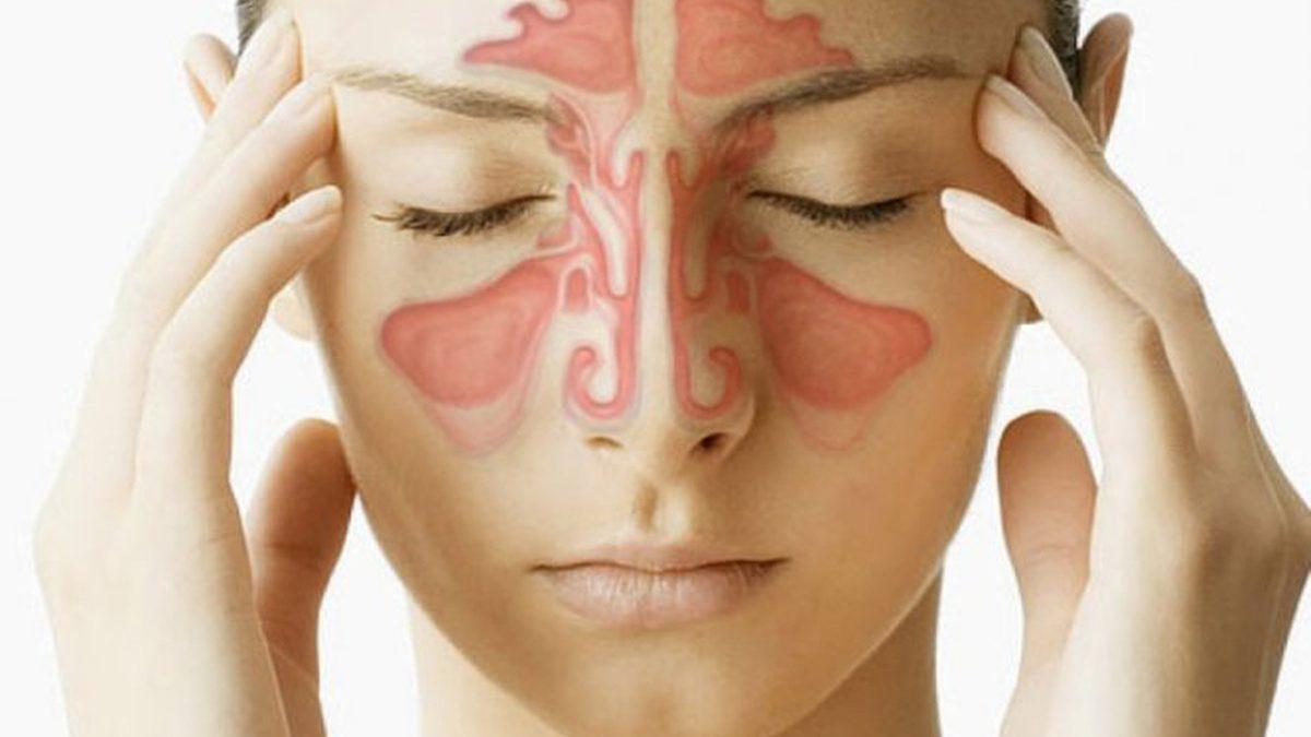 6 bệnh không cần sử dụng ngay kháng sinh nhưng bệnh nhân thường lạm dụng - Ảnh 1