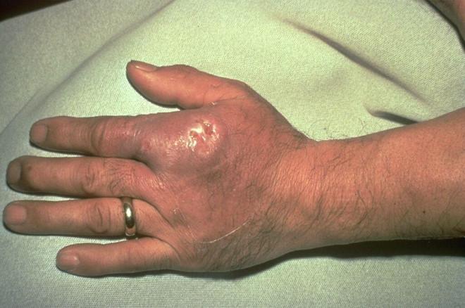Nhập viện vì nhiễm khuẩn nặng sau khi rửa bể cá cảnh - Ảnh 1