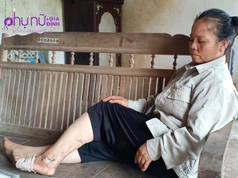 """Nghẹn lòng số phận bất hạnh của nữ sinh không cha, chăm mẹ tật nguyền sau tai nạn: """"Em sợ mẹ phải cưa chân"""" - Ảnh 3"""