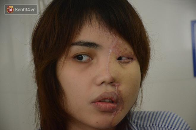 Tạt axit hủy hoại khuôn mặt vợ sắp cưới, cựu thiếu úy công an đối diện mức án cao nhất 10 năm tù - Ảnh 2