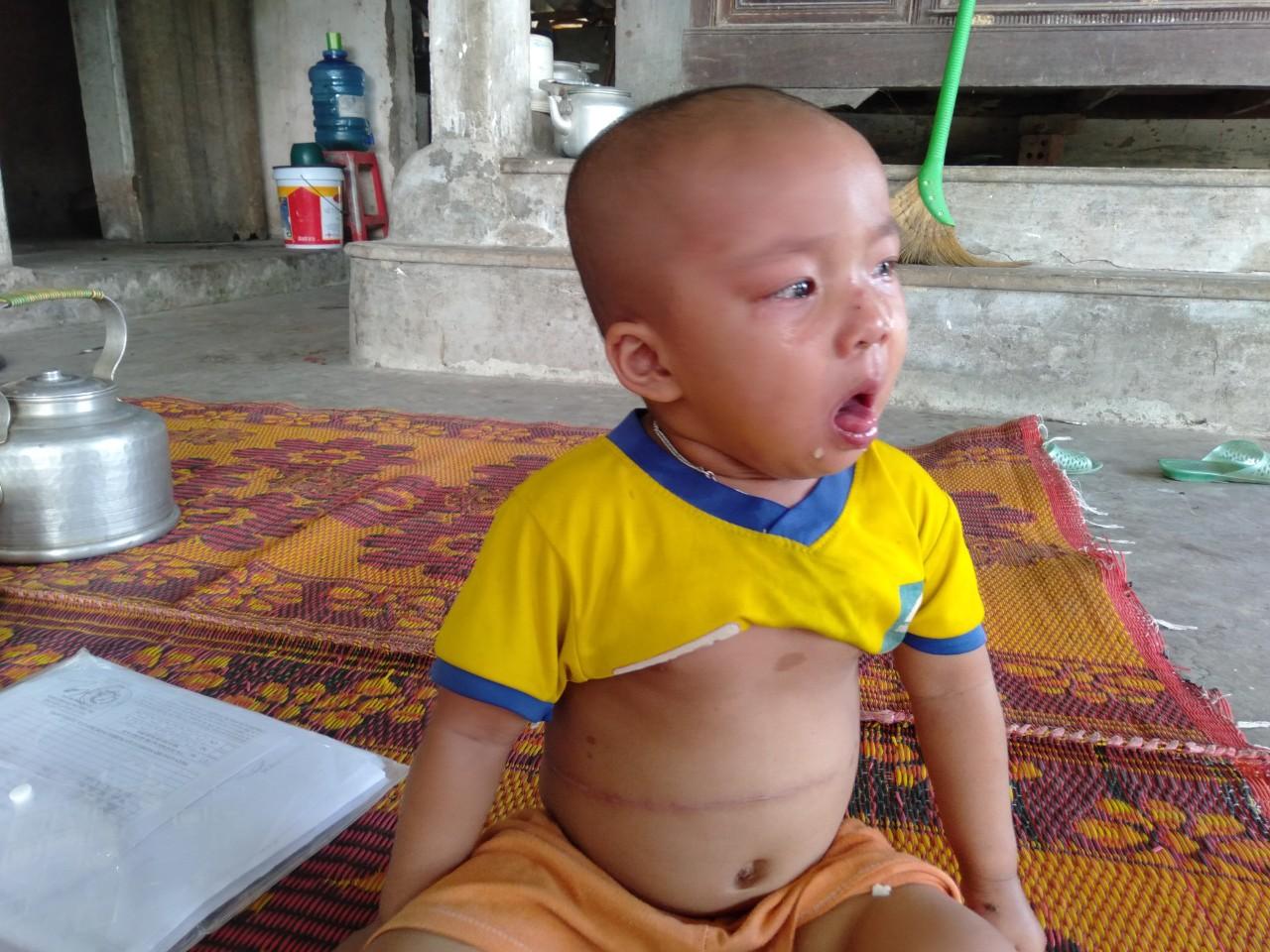 Tiếng khóc xé lòng của bé gái 3 tuổi mắc bệnh hiểm nghèo: 'Bà ơi, cháu đau lắm, sao bố mẹ mãi không về hả bà?' - Ảnh 11
