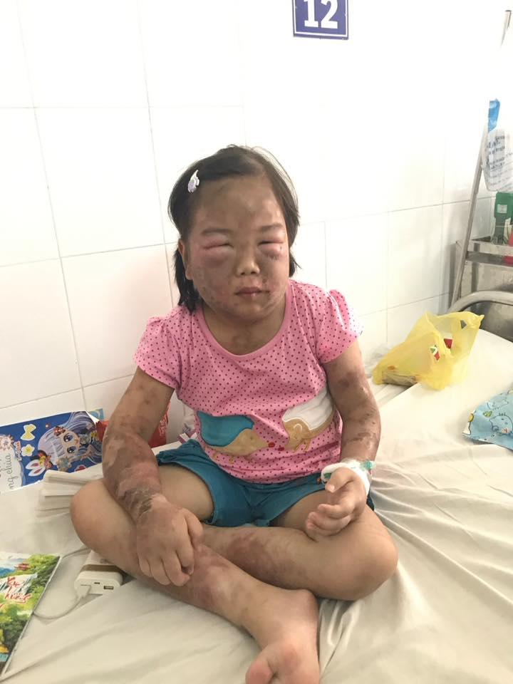 Sự sống mong manh của bé gái 10 tuổi, toàn thân phù nề vì căn bệnh quái ác - Ảnh 2