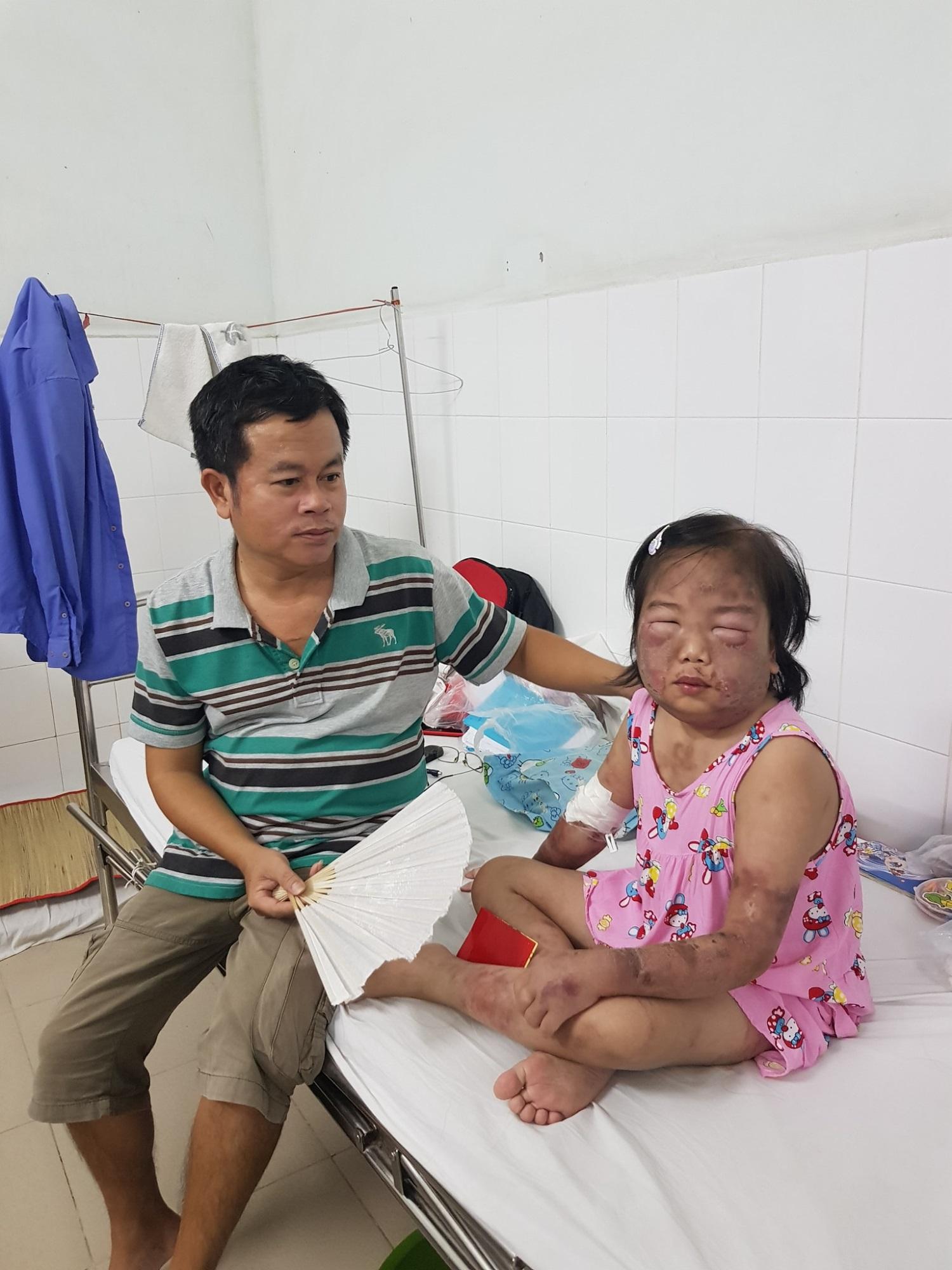 Sự sống mong manh của bé gái 10 tuổi, toàn thân phù nề vì căn bệnh quái ác - Ảnh 3