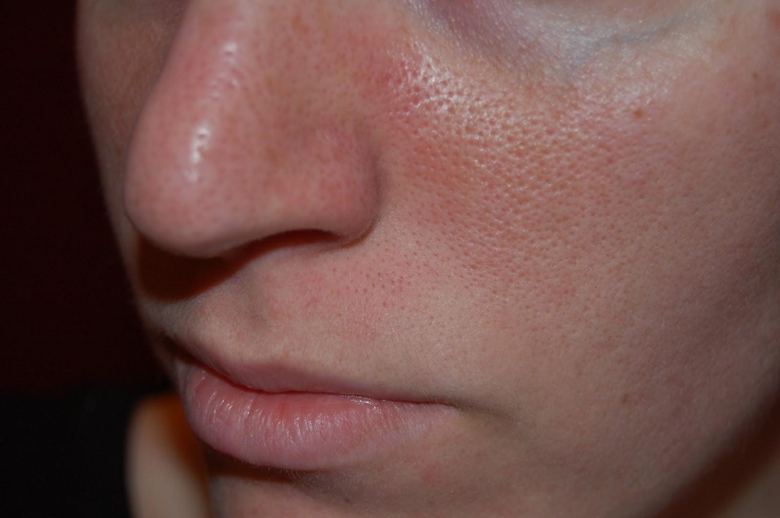 Áp dụng phương pháp này, lỗ chân lông to cỡ nào cũng se 'khít khìn khịt' giúp da bóng mịn, trắng hồng trở lại - Ảnh 1